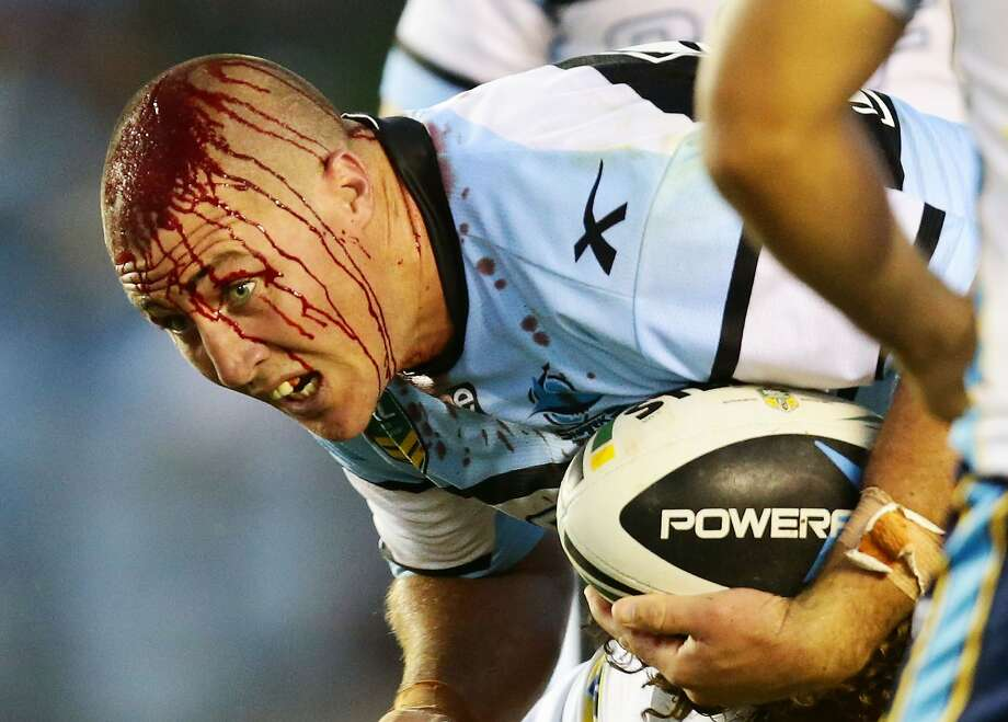 Just a scratch, mate:Bryce Gibbs of the Cronulla Sharks keeps playing despite bleeding 