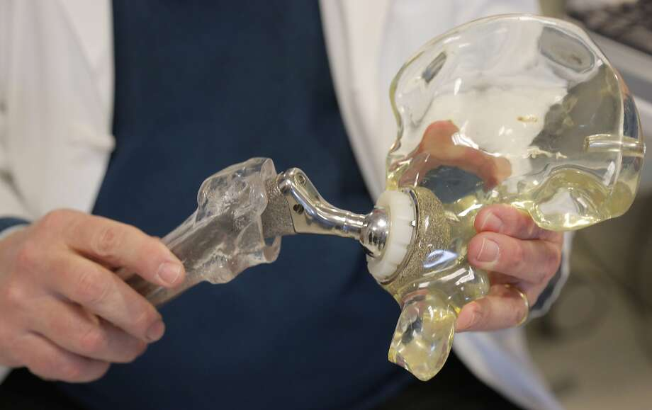 In this Wednesday, March 5, 2014 photo, Dr. Joshua Jacobs, orthopedics surgery chief at Rush University Medical Center and president of the American Academy of Orthopaedic Surgeons in Chicago, holds a model of a cementless hip replacement. About two of every 100 Americans now has an artificial joint, doctors are reporting. That's  2.5 million with a new hip and 4.7 million with a new knee, according to the first major study to look at how common these operations have become. Results were reported Tuesday, March 11, 2014 at an American Academy of Orthopaedic Surgeons conference in New Orleans. (AP Photo/M. Spencer Green) Photo: M. Spencer Green, Associated Press