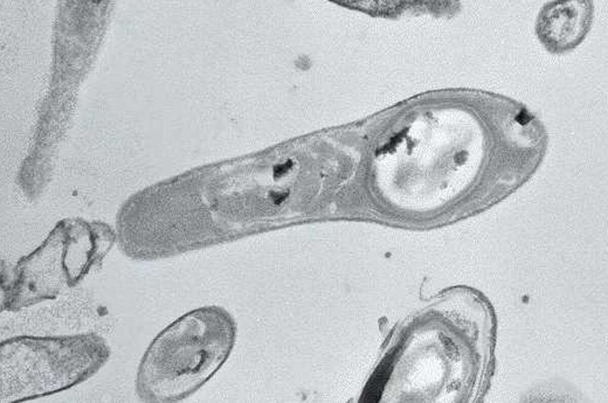 2. There are about a dozen Vibrio species know to cause vibriosis in humans.