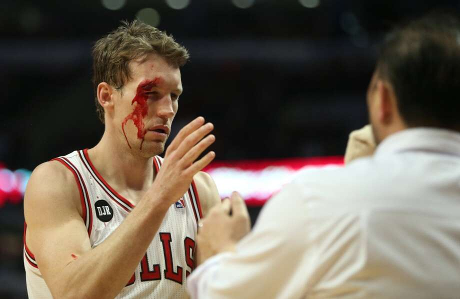 Mike Dunleavy leaves the game in the second quarter after an injury. Photo: Chris Sweda, McClatchy-Tribune News Service