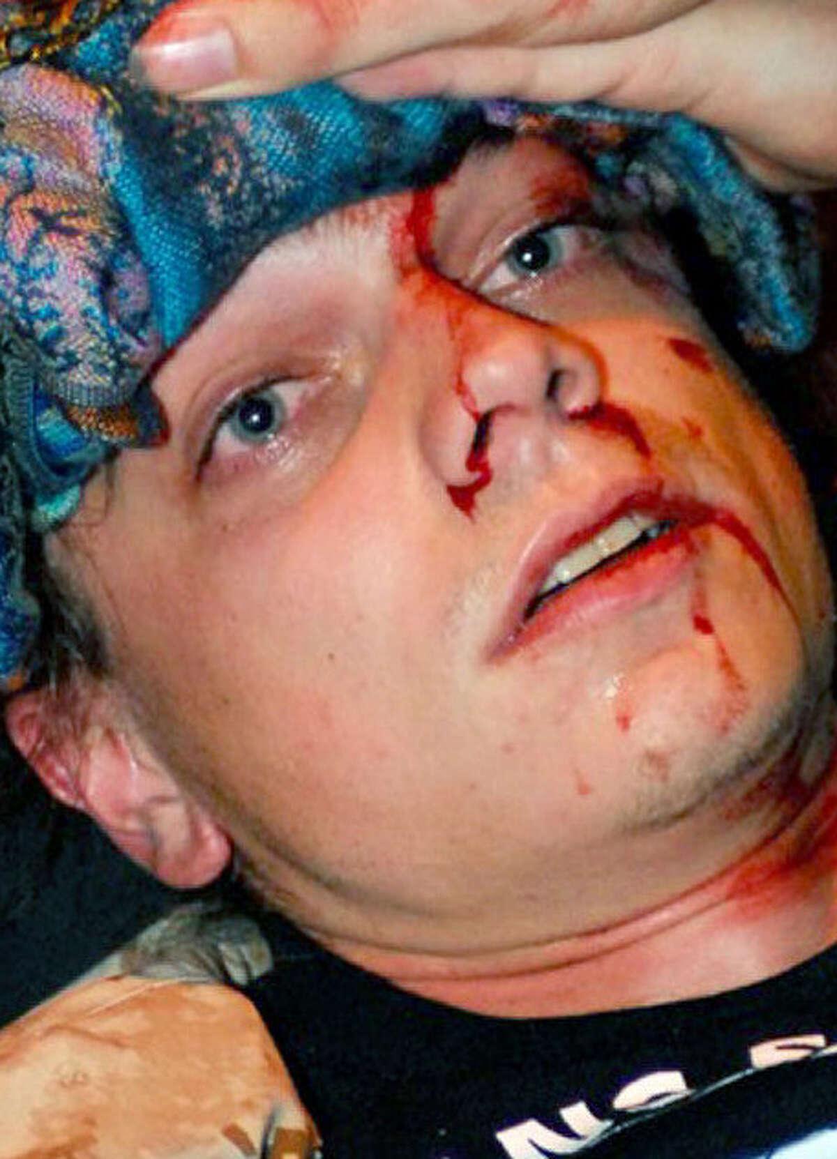 Iraq War vet Scott Olsen was seriously hurt in a 2011 fracas.