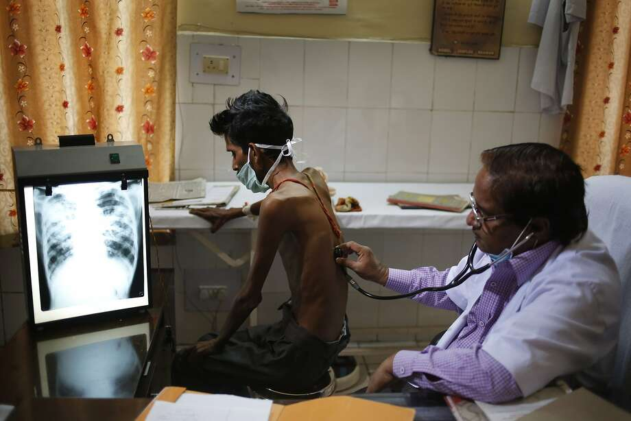 An Indian doctor examines a tuberculosis patient in a government TB hospital on World Tuberculosis Day in Allahabad, India, Monday, March 24, 2014. India has the highest incidence of TB in the world, according to the World Health Organization's Global Tuberculosis Report 2013, with as many as 2.4 million cases. India saw the greatest increase in multidrug-resistant TB between 2011 and 2012. The disease kills about 300,000 people every year in the country. (AP Photo/Rajesh Kumar Singh) Photo: Rajesh Kumar Singh, Associated Press