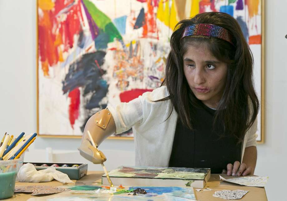 Afghan war victim Shah Bibi Tarakhail, 7, not only handles a brush well but has an impressive grasp of matching colors, notes artist Davyd Whaley. Photo: Damian Dovarganes, Associated Press