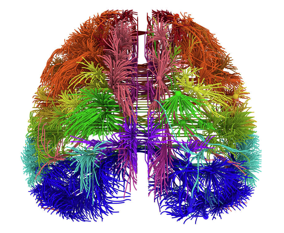 This image provided by the Allen Institute for Brain Science on March 28, 2014 shows a top-down view of connections originating from different cortical areas of the mouse brain. The research published Wednesday, April 2, 2014 is the first brain-wide wiring diagram for a mammal at such a level of detail. While it does not reveal every connection between each of the rodent's 75 million brain cells, it shows how parts of the brain are connected. Photo: Uncredited, AP  / AP2014