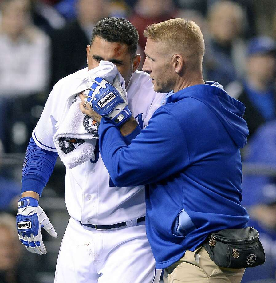 Trainer Nick Kenney tends to the Royals' Omar Infante after he was hit in the face by a pitch. Photo: John Sleezer, McClatchy-Tribune News Service