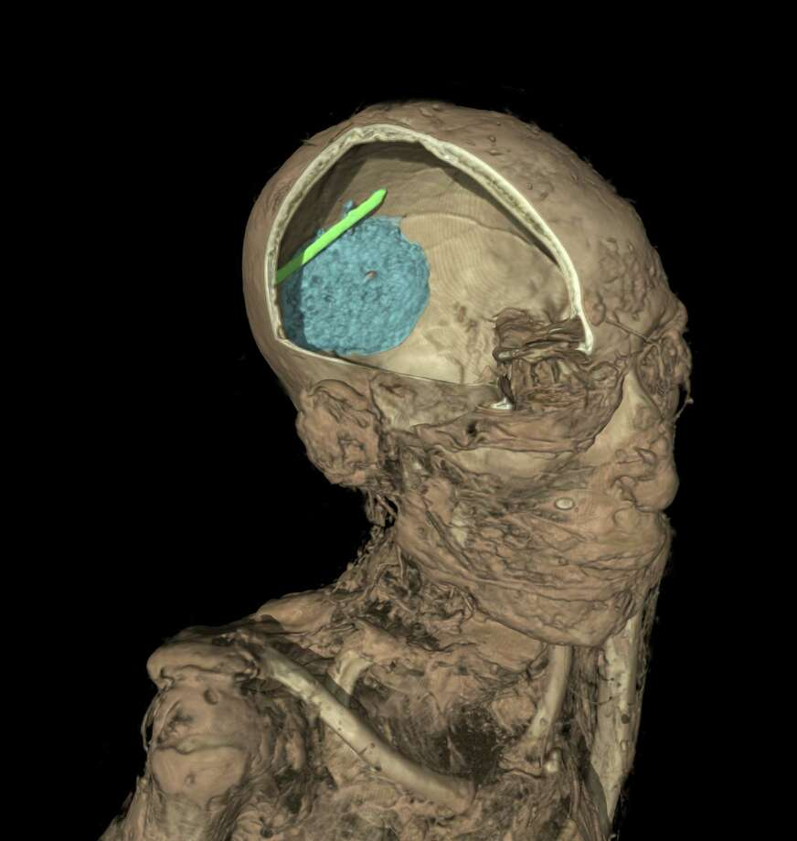 This undated handout image provided by The British Museum on Wednesday, April 9, 2014  shows the computer generated CT scan of the skull of the mummy of an adult man, name unknown. The scan shows the remains of the brain, colored in blue, and evidence of a tool that was left in the skull as a mistake during the mummification process, in green. Scientists at the museum have used CT scans and sophisticated imaging software to go beneath the bandages, revealing skin, bones, preserved internal organs, and in one case a brain-scooping rod left inside a skull by embalmers. The findings go on display next month in an exhibition that sets eight of the museum's mummies alongside detailed three-dimensional images of their insides and 3-D printed replicas of some of the items buried with them. (AP Photo/The British Museum)  Photo: Uncredited, AP  / AP2014