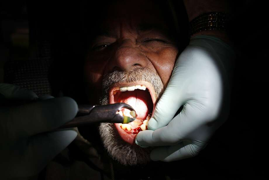 A patient has a loose tooth removed during the Bridges to Health event at the old armory building in the Mission. Photo: Pete Kiehart, The Chronicle