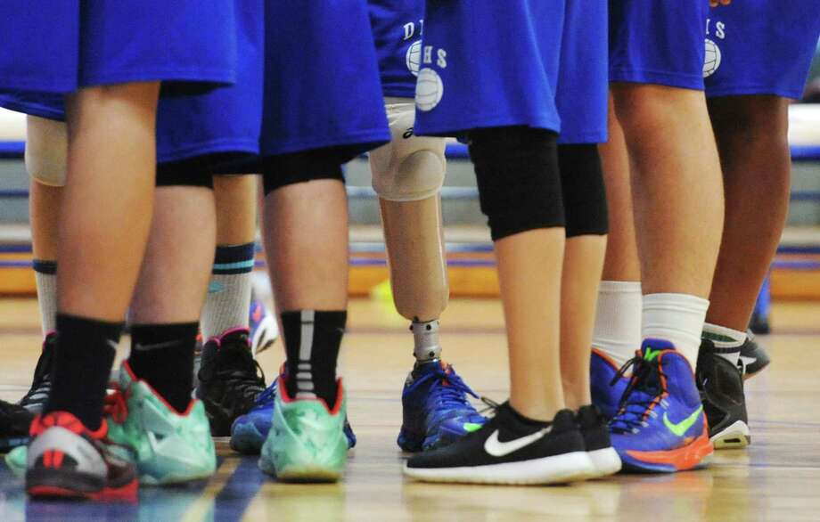 Danbury volleyball player Tom Demouth, with his prosthetic leg, is surrounded by teammates before his game against Greenwich at Danbury High School in Danbury, Conn. Friday, May 2, 2014. Photo: Tyler Sizemore / The News-Times