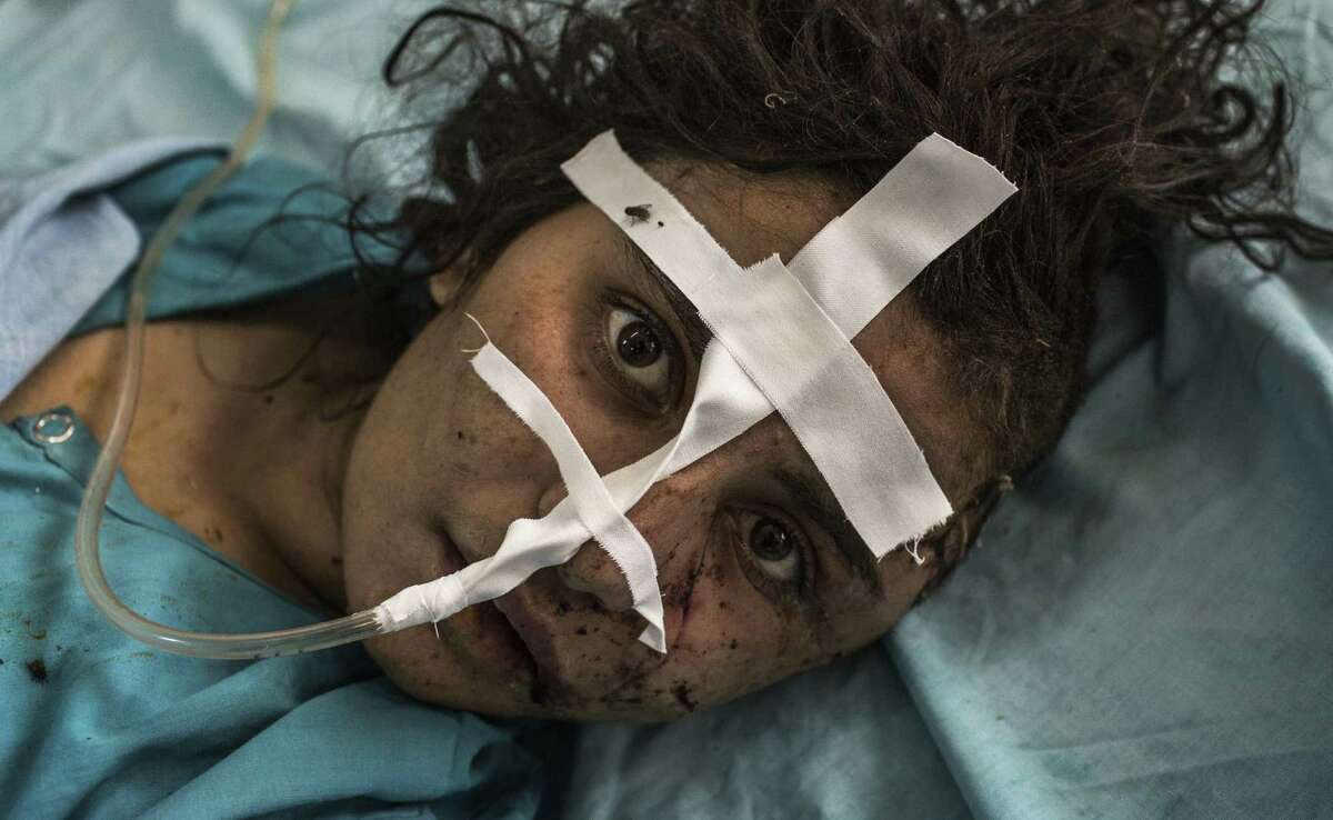 A woman recovers at a hospital in Jalalabad, Afghanistan, after her brother reportedly attacked her with an ax for