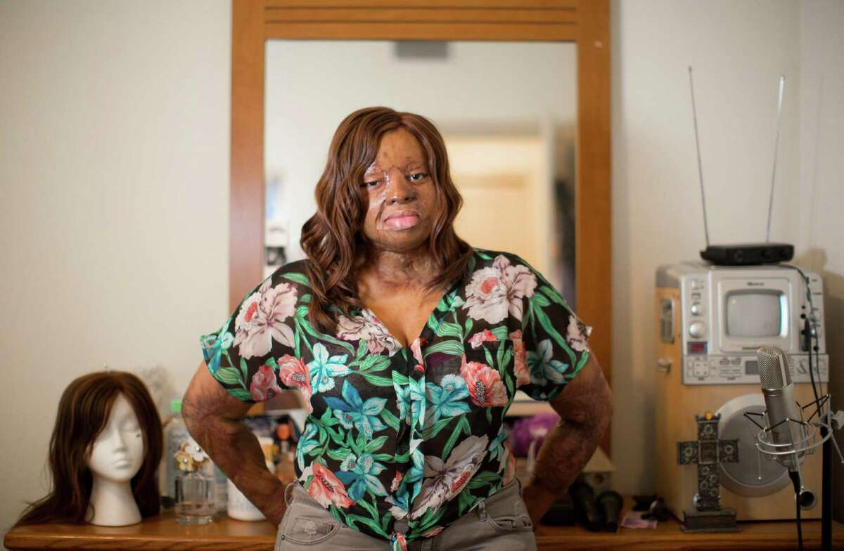 Her story resonates. Every single time Kechi's story has been repeated every week on the show. And it strikes a chord every time because of the severity. And because of her bond with her mother. Kechi has been through more than 100 surgeries to repair injuries she sustained aboard Sosoliso Airlines flight 1145 in December 2005. Kechi was one of only two survivors. Click through to see why we think Kechi could win the whole thing.