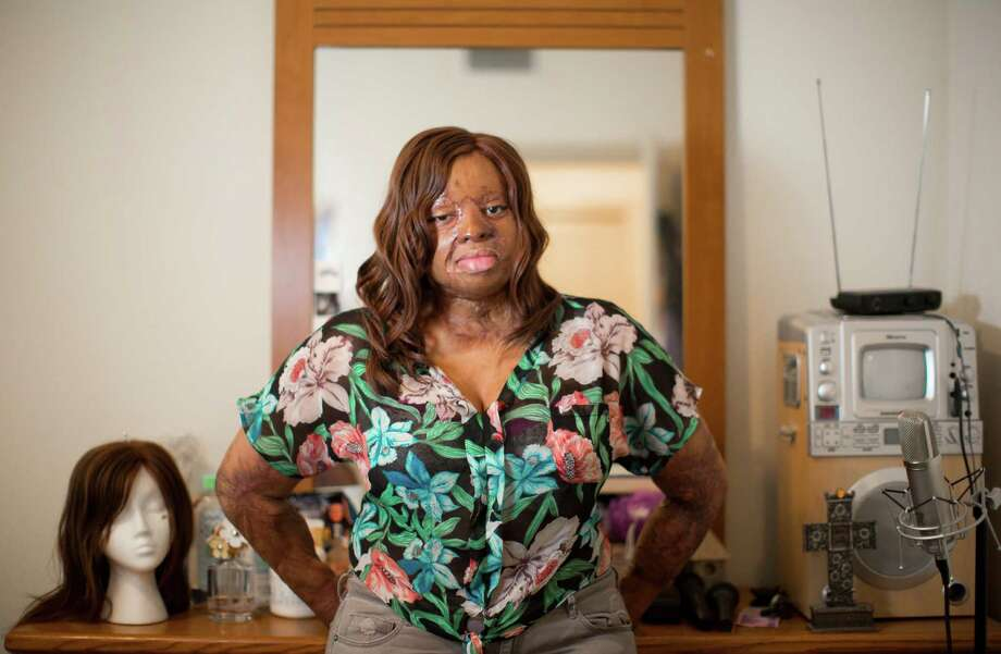 Kechi Okwuchi, 24, has been through about 100 surgeries to repair the injuries she sustained aboard Sosoliso Airlines flight 1145 in December 2005. After the plane crashed, she was one of only two survivors.   ( Marie D. De Jesus / Houston Chronicle ) Photo: Marie D. De Jesus, Staff / © 2014 Houston Chronicle
