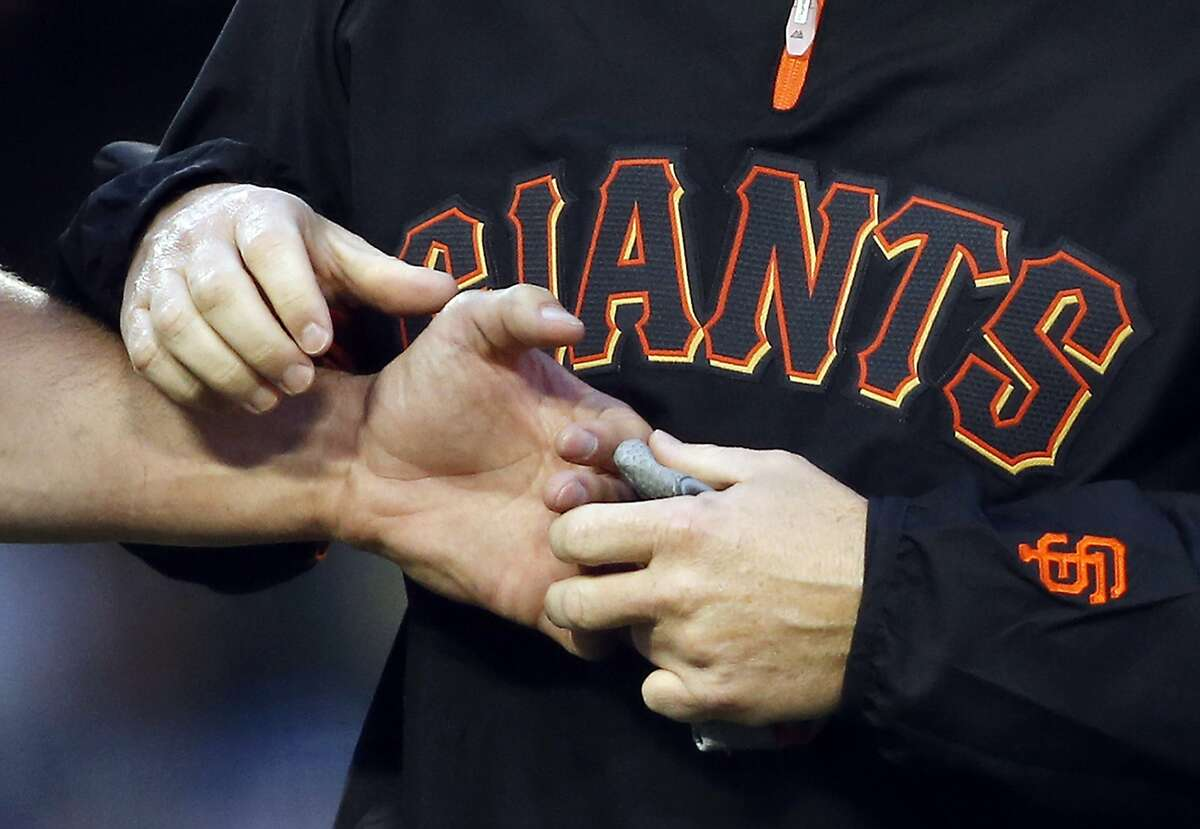 San Francisco Giants' Brandon Belt has his left hand checked on by a trainer after being hit by a pitch against the Los Angeles Dodgers during the second inning of a baseball game, Friday, May 9, 2014, in Los Angeles. (AP Photo/Danny Moloshok)
