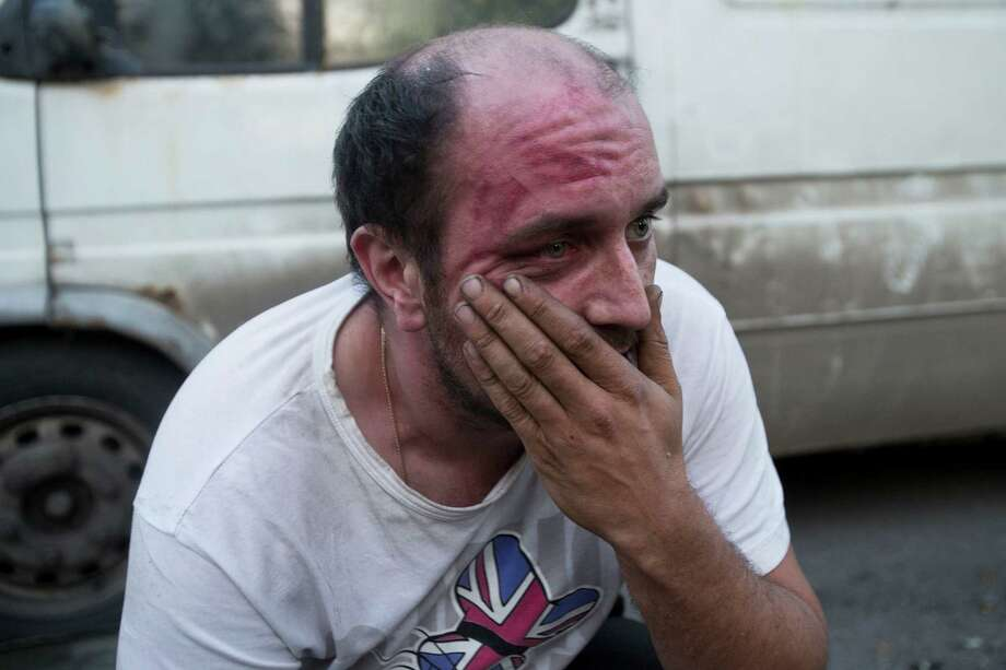 "Russian employer Denis Vasiliev reacts after he was attacked by Russian nationalists and soccer fans as they decided he was non-Slav, during a rally to commemorate the death of a soccer fan Leonid Safyannikov, who was killed by an Uzbek on May 13 in Pushkino, about 20 kilometers from Moscow, Russia, Thursday, May 15, 2014.  Denis Vasiliev was carrying vegetables to his small market. Some hundreds of people gathered near Pushkino railway station and marched through the town shouting slogans like ""Russia for Russians"". Police detained about 40 activists. Photo: Pavel Golovkin, AP  / AP"