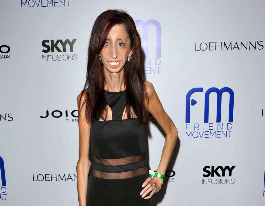 Lizzie Velasquez of Texas has never weighed more than 64 pounds because she has a rare disease. Photo: John Shearer, Associated Press