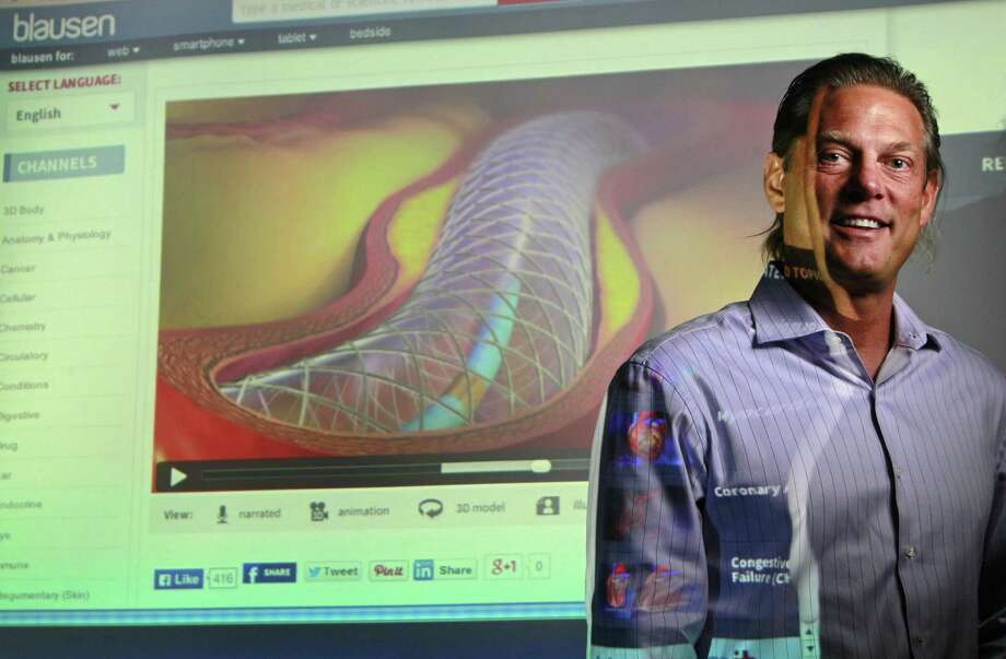Bruce Blausen, head of Blausen Medical Animations, poses in front of a 3-D display of coronary angioplasty on his website. Photo: Melissa Phillip / Houston Chronicle / © 2014  Houston Chronicle