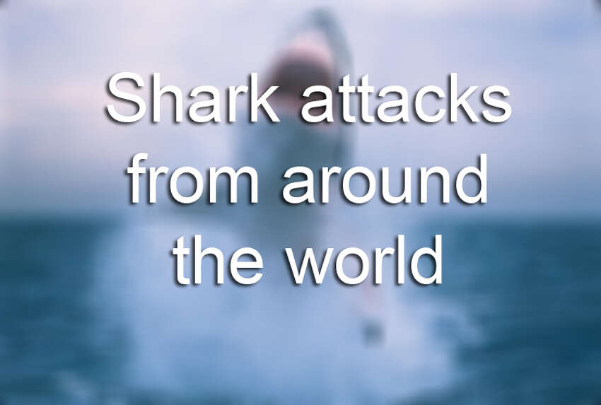 The chances of being bitten by a shark are very small - particularly if you're just sitting on your couch watching 'Shark Week.' But these victims weren't so lucky.