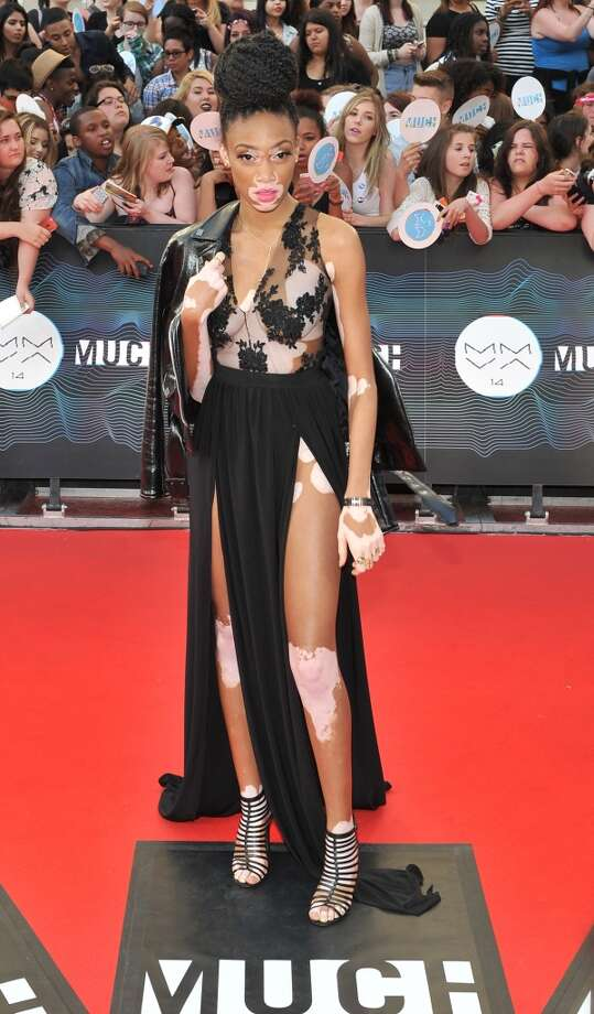 Winnie Harlow arrives at the 2014 MuchMusic Video Awards at MuchMusic HQ on June 15, 2014 in Toronto, Canada. Photo: Sonia Recchia, Getty Images
