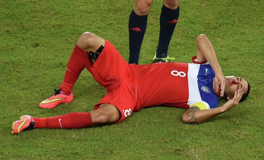 US forward Clint Dempsey bleeds from the nose after colliding with Ghana's defender John Boye during a Group G football match between Ghana and US at the Dunas Arena in Natal during the 2014 FIFA World Cup on June 16, 2014.    AFP PHOTO / JAVIER SORIANO Photo: JAVIER SORIANO, AFP/Getty Images / AFP