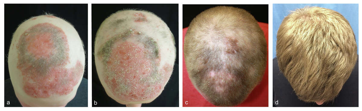 Yale researchers treated a man with alopecia with a rheumatoid arthritis drug, hoping to reverse his hair loss. The results are below. From left to right: before treatment; two months into treatment; five months into treatment; eight months into treatment.