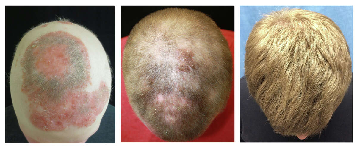 Yale researchers treated a man with alopecia with a rheumatoid arthritis drug, hoping to reverse his hair loss. The results are below. From left to right: before treatment; five months into treatment; eight months into treatment.