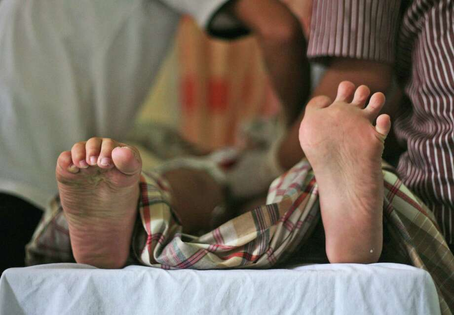 A boy's toes curl in pain as he is being circumcised by paramedics during a charge-free mass circumcision provided for the poor by a wealthy clan in Medan, North Sumatra, Indonesia, Sunday, June 22, 2014. In accordance with Islamic tradition, Indonesian Muslim boys are circumcised before they reach puberty. Indonesia is the world's most populous Muslim country. Photo: Binsar Bakkara, AP  / AP