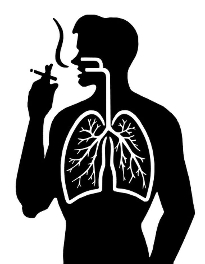 """Association between Marijuana Exposure and Pulmonary Function over 20 YearsMarijuana and tobacco smoke may contain many similar components, but this study found that occasional small usage of marijuana had no negative effects on a person's lungs.""""Occasional and low cumulative marijuana use was not associated with adverse effects on pulmonary function.""""""""Marijuana smoke contains many of the same constituents as tobacco smoke, but it is unclear whether smoking marijuana causes pulmonary damage similar to that caused by tobacco. …It is possible that cumulative damage to the lungs from years of marijuana use could be masked by short-term effects; prior analyses have not attempted to disentangle these factors. Smoking marijuana is increasingly common in the United States, and understanding whether it causes lasting damage to lung function has important implications for public health messaging and medical use of marijuana."""" Photo: CSA Images/ B&W Archive Collection, Getty Images/Vetta / Vetta"""