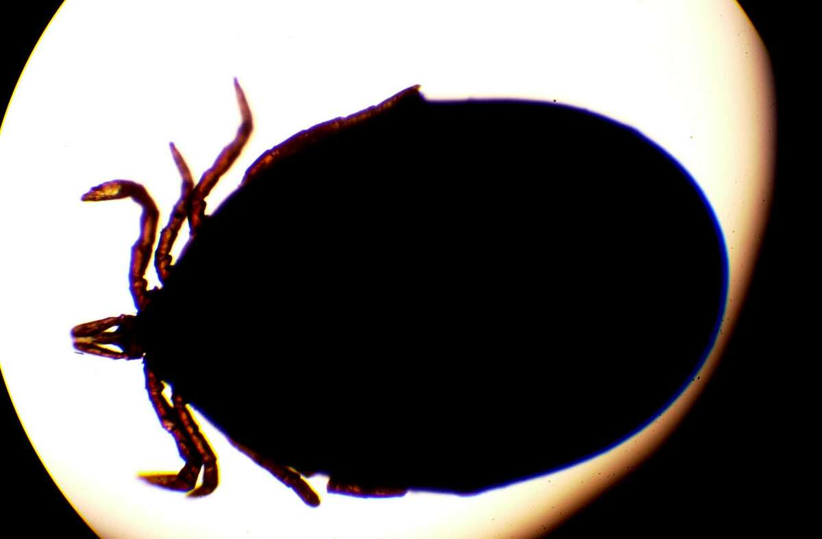 An engorged dead deer tick infected with the lyme bacteria as seen under a microscope at Albany Medical Center, Wednesday, Aug. 6, 2003, N.Y. (Steve Jacobs/Times Union archive)