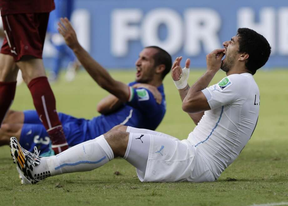 Uruguay's Luis Suarez holds his teeth after running into Italy's Giorgio Chiellini's shoulder during the group D World Cup soccer match between Italy and Uruguay at the Arena das Dunas in Natal, Brazil, Tuesday, June 24, 2014. Photo: Ricardo Mazalan, Associated Press