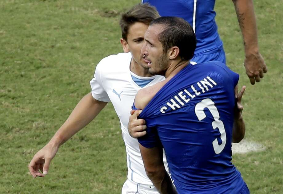 Italy's Giorgio Chiellini complains after Uruguay's Luis Suarez ran into his shoulder with his teeth during the group D World Cup soccer match between Italy and Uruguay at the Arena das Dunas in Natal, Brazil, Tuesday, June 24, 2014. Photo: Hassan Ammar, Associated Press