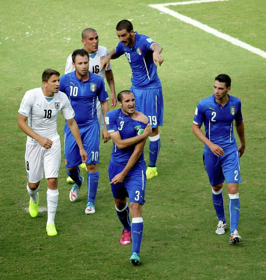 Italy's Giorgio Chiellini (3) displays his shoulder during the group D World Cup soccer match between Italy and Uruguay at the Arena das Dunas in Natal, Brazil, Tuesday, June 24, 2014. (AP Photo/Hassan Ammar) ORG XMIT: WCDC154 Photo: Hassan Ammar / AP