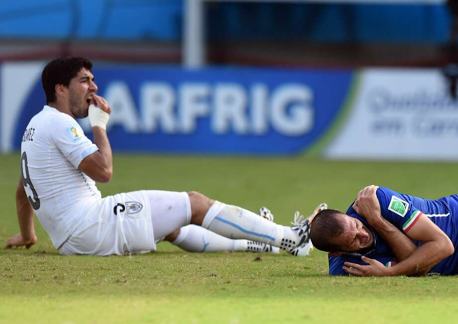 He likes his Chiellini al dente: Uruguay forward Luis Suarez checks his teeth after biting 
