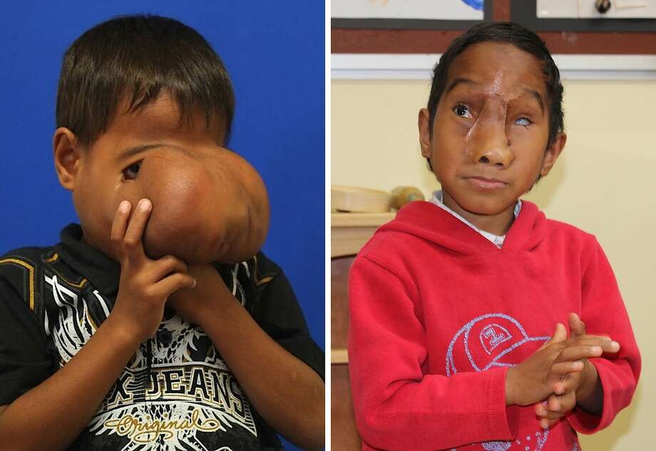 Jhonny gets his face back:Before undergoing surgery to remove a massive tumor on his face, 7-year-old Jhonny Lameon of Manila 