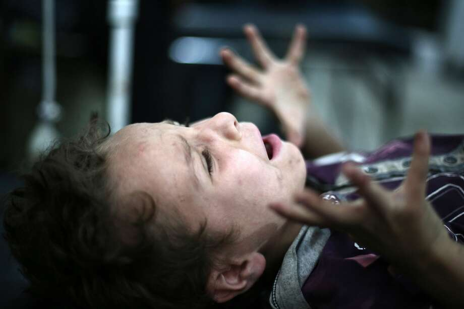 TOPSHOTS A boy screams as a doctor removes shrapnel from his leg in the rebel-held town of Douma, northeast of the capital Damascus on July 3, 2014. Rebels from northern and eastern Syria threatened to lay down their arms in a week if the country's exiled opposition does not help them fight the jihadist Islamic State (IS). AFP PHOTO /ABD DOUMANY ABD DOUMANY/AFP/Getty Images Photo: Abd Doumany, AFP/Getty Images