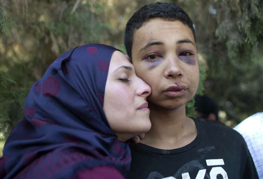Tariq Abu Khdeir, right, a Palestinian-American teenager who was allegedly beaten by police, is hugged by his mother following a hearing at Jerusalem Magistrates Court on July 6, 2014. Photo: AHMAD GHARABLI, Stringer / AFP