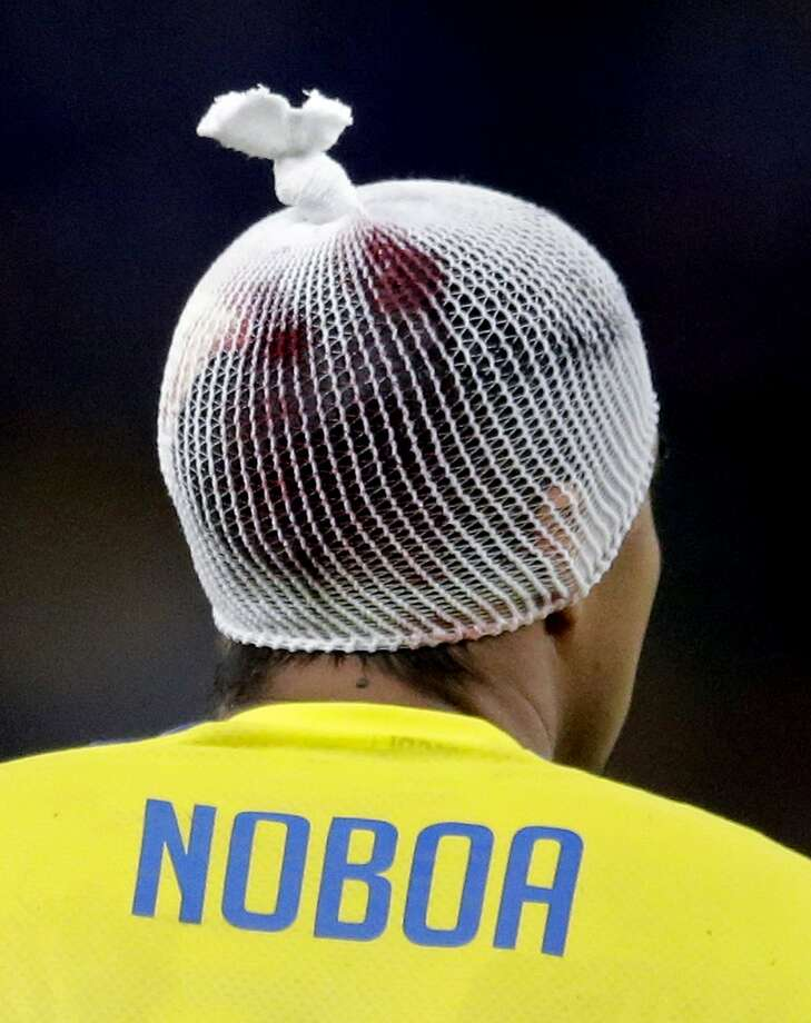 Verdict: Bloody but still able to play. Noboa spent the rest of the match wearing this bandage, which the refs made him change when blood started leaking onto his jersey. Photo: Bernat Armangue, Associated Press