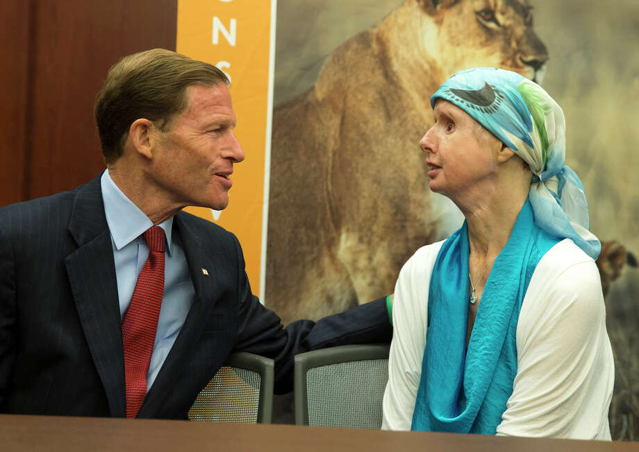 Sen. Richard Blumenthal, D-Conn., left, talks with Charla Nash during a news conference on Capitol Hill in Washington, Thursday, July 10, 2014. Nash was mauled by a pet chimp and had to undergo a face transplant. She is now advocating for a bill to be passed that would ban the interstate trade of primates as pets. Photo: AP Photo/ Evan Vucci / Associated Press