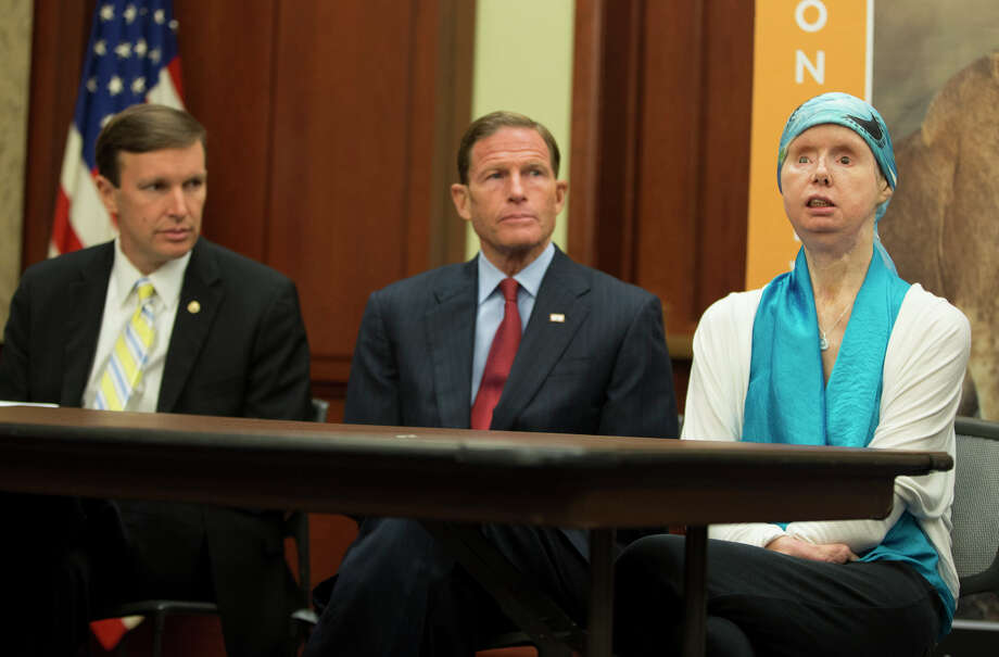 Sen. Christopher Murphy, D-Conn., left, and Sen. Richard Blumenthal, D-Conn., center, sit with Charla Nash during a news conference on Capitol Hill, on Thursday, July 10, 2014, in Washington. Nash was mauled by a pet chimp and had to undergo a face transplant. She is now advocating for a bill to be passed that would ban the interstate trade of primates as pets. Photo: AP Photo/ Evan Vucci / Associated Press