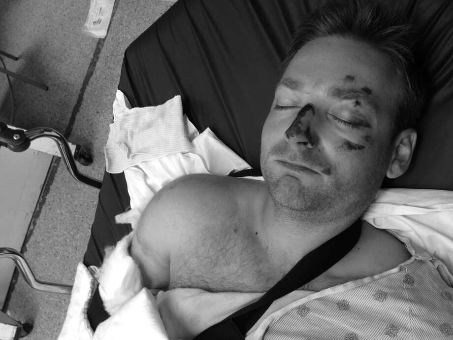 Martin Robb, 34, was knocked unconscious suffering head and neck injuries as well as a broken arm after a hit-and-run on Richmond Ave on June 5th 2014, Houston Crime Stoppers said. Photo: Martin Robb