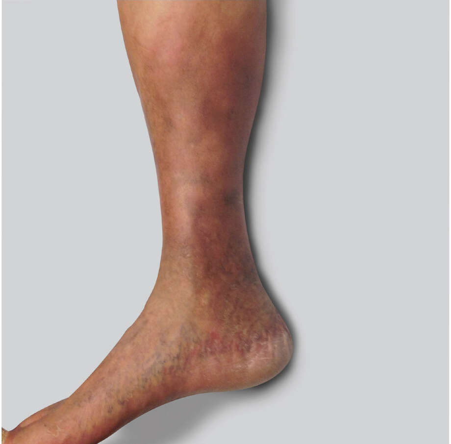 If you're having discomfort in your legs, a simple vein consultation and diagnostic ultrasound can determine if venous insufficiency is present.