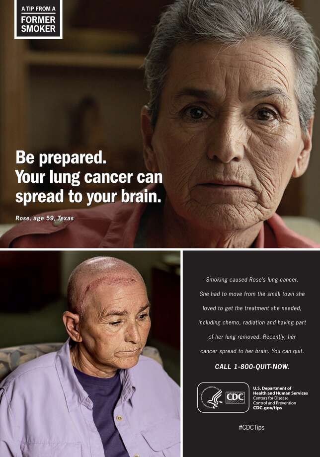 Houston resident Rose recently began appearing in videos and print ads as part of an aggressive anti-smoking campaign first launched by the Centers for Disease Control and Prevention in 2014.Click through the slideshow to see other print ads from the campaign. Some of the images are graphic.  Photo: CDC