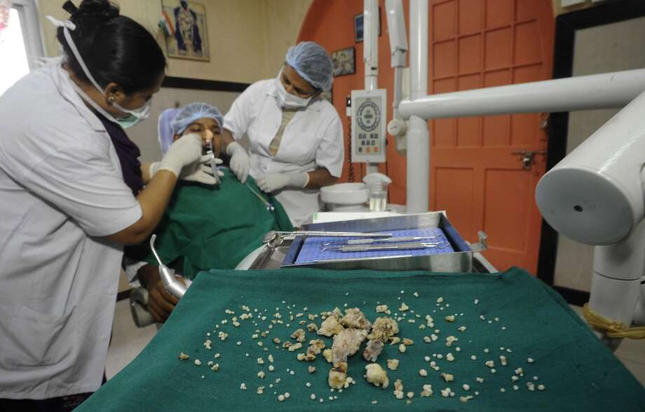 Indian dentists operate on 17-year-old Ashik Gavai at JJ Hospital in Mumbai.  Surgeons removed 232 teeth from the mouth of the teenager in what they believe may be a world-record operation. Photo: STRDEL, AFP/Getty Images