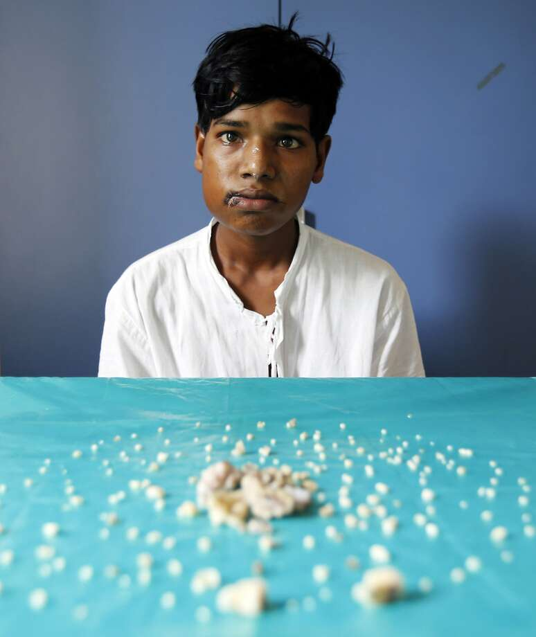 He just had 232 'teeth' pulled: Ashik Gavai sits near 232 tooth-like structures removed from his jaw after undergoing surgery in 