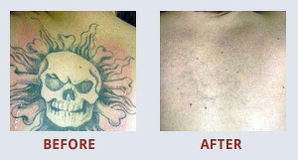 Laser Tattoo Removal Technician Salary Uk Best Tatto