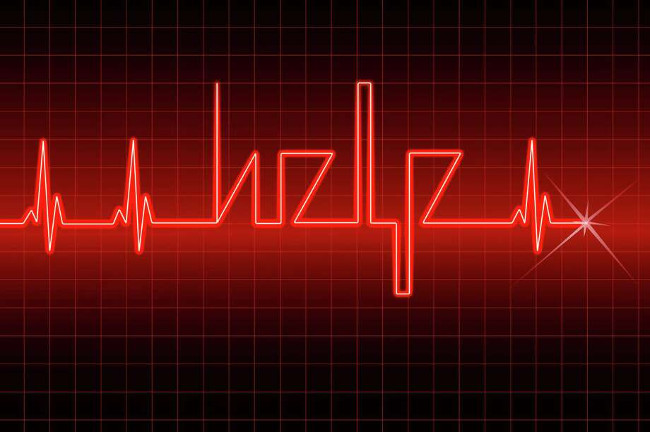 If your heart skips a beat now and then, it may mean you have or are headed for atrial fibrillation, or A fib. That's a disturbed heart rhythm that increases the risk of stroke and heart failure. Photo: Alex Kor / handout / stock agency
