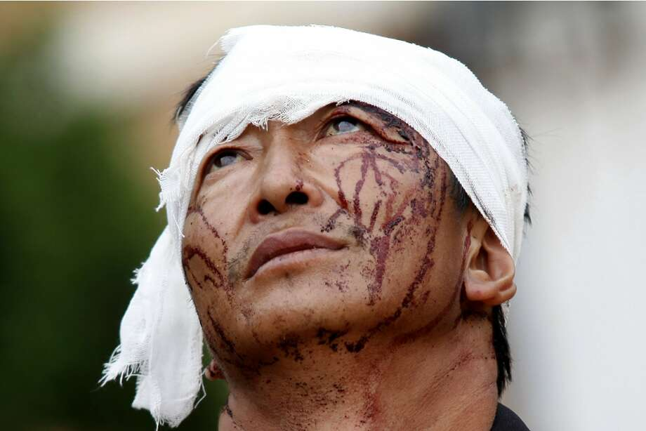 An injured man with dried blood stains on his face stands on the street of the town of Longtoushan which is the epicenter of an earthquake that struck Ludian County in southwest China's Yunnan Province, Monday, Aug. 4, 2014. Rescuers dug through shattered homes Monday looking for survivors of the strong earthquake that toppled thousands of homes on Sunday, killing hundreds and injuring more than a thousand people. (AP Photo) CHINA OUT Photo: Uncredited, Associated Press