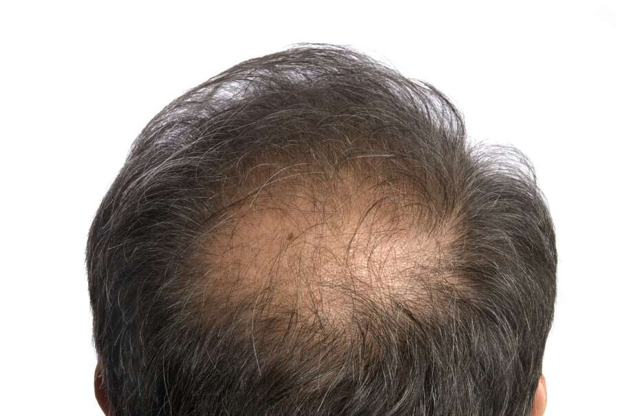 Santa Barbara, California: hair restoration Photo: Huseyin Turgut Erkisi, Getty Images