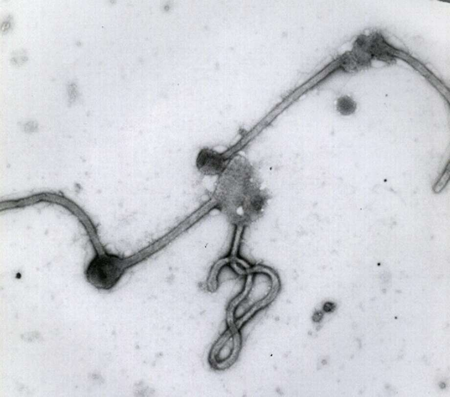 This undated photo made available by the Antwerp Institute of Tropical Medicine in Antwerp, Belgium, shows the Ebola virus viewed through an electron microscope. As of mid-2014, Ebola has caused two dozen outbreaks in Africa since the virus first emerged in 1976.  Photo: Associated Press