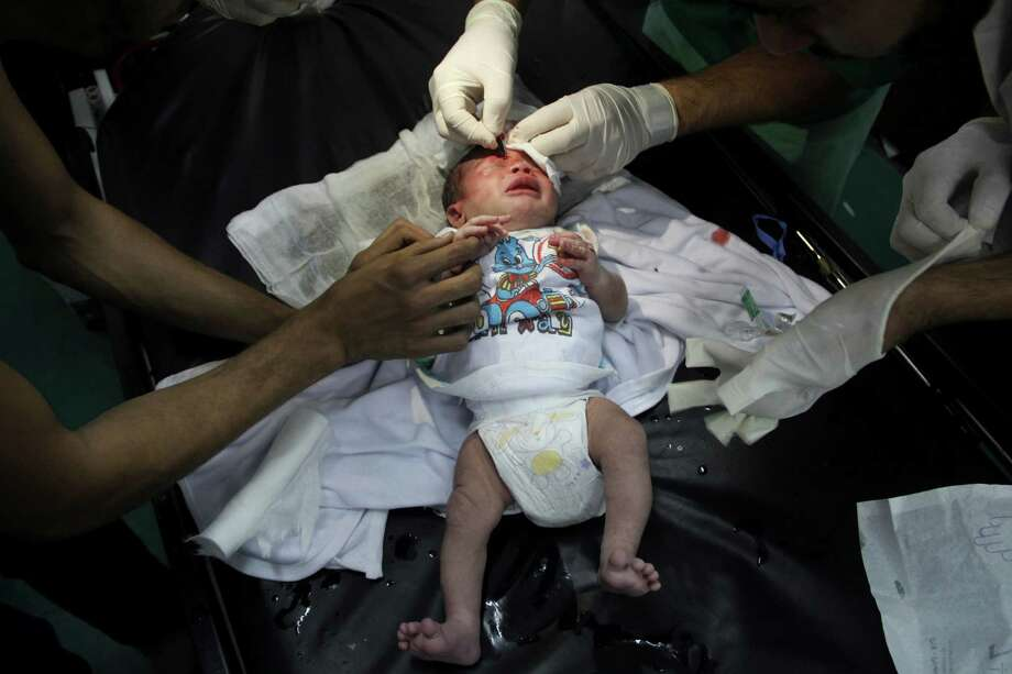 Palestinian doctors treats an injured baby, following an Israeli airstrike on a building, at the treatment room of al Najar hospital in Rafah in the southern Gaza Strip, Thursday, Aug. 21, 2014. (AP Photo/Hatem Ali) Photo: Hatem Ali, STR / AP