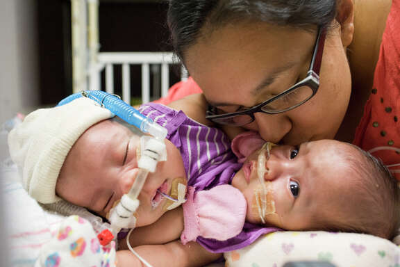 Knatalye Hope and Adeline Faith, pictured with their mother Elysse Mata, were born on April 11, 2014 at Texas Children's Pavilion for Women in Houston. The conjoined twins are being cared for by a team of specialists plans for surgical separation are being discussed.