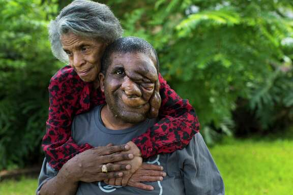 Reggie Bibbs basks in a hug from his mom, Dorothy Bibbs. Both have neurofibromatosis, but his symptoms are more severe.